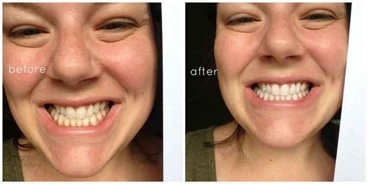 Cara Memutihkan Gigi Secara Alami Sipendik