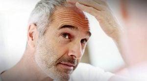 Cara Menumbuhkan Rambut Botak Dengan Cepat